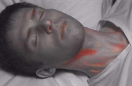 دوربینی که جریان خون در بدن را نشان می دهد